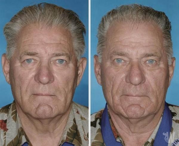 Study of twins shows smoking damage